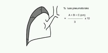 Pneumothorax2